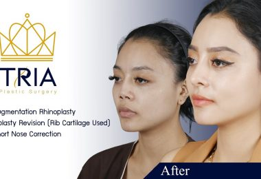 TRIA Plastic Surgery Bangkok