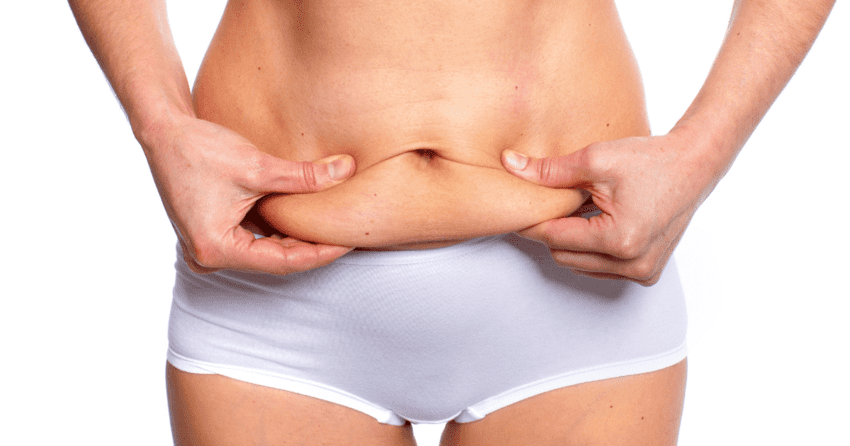 This image has an empty alt attribute; its file name is abdominoplastie-circonferentielle.png