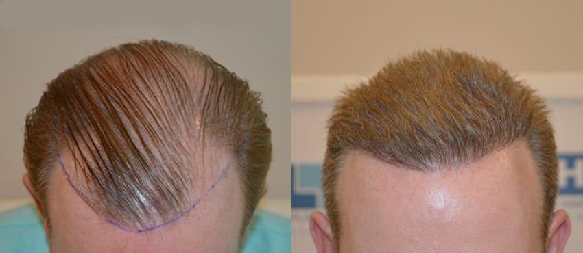 This image has an empty alt attribute; its file name is prix-greffe-de-cheveux-DHI-turquie.jpg