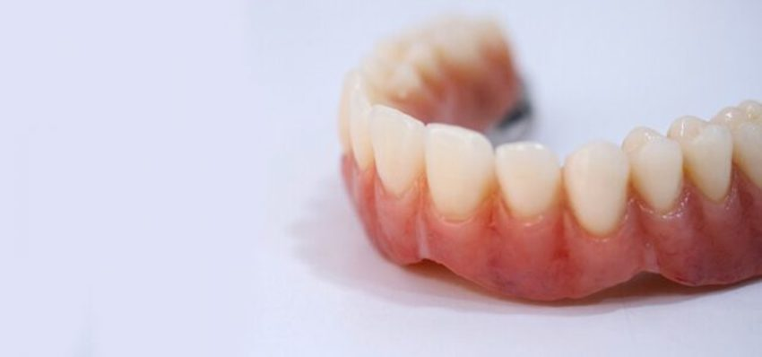 This image has an empty alt attribute; its file name is dentier-hongrie.jpg