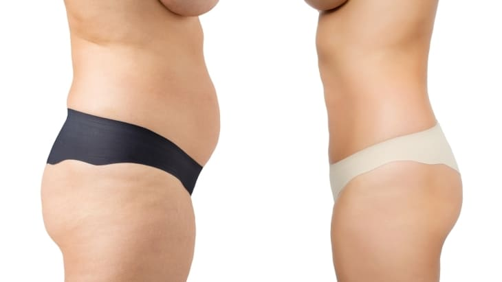 This image has an empty alt attribute; its file name is abdominoplastie-ventre-plat-turquie.jpg