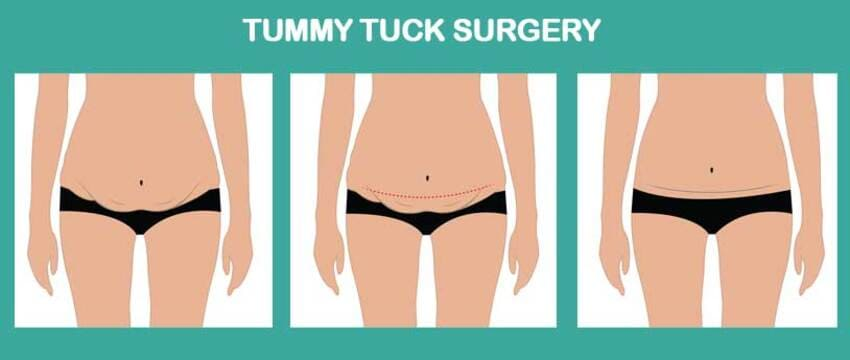 This image has an empty alt attribute; its file name is Tummy-Tuck.jpg