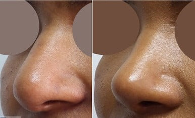 This image has an empty alt attribute; its file name is rhinoplastie-ethnique-turquie.jpg