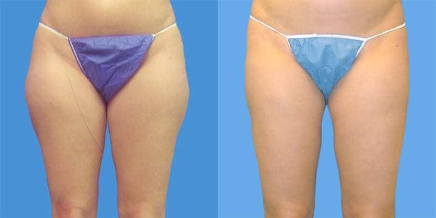 This image has an empty alt attribute; its file name is liposuccion-cuisses-resultats.jpg