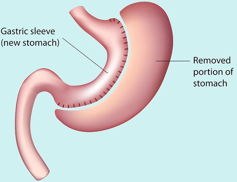This image has an empty alt attribute; its file name is sleeve-gastrique.jpg