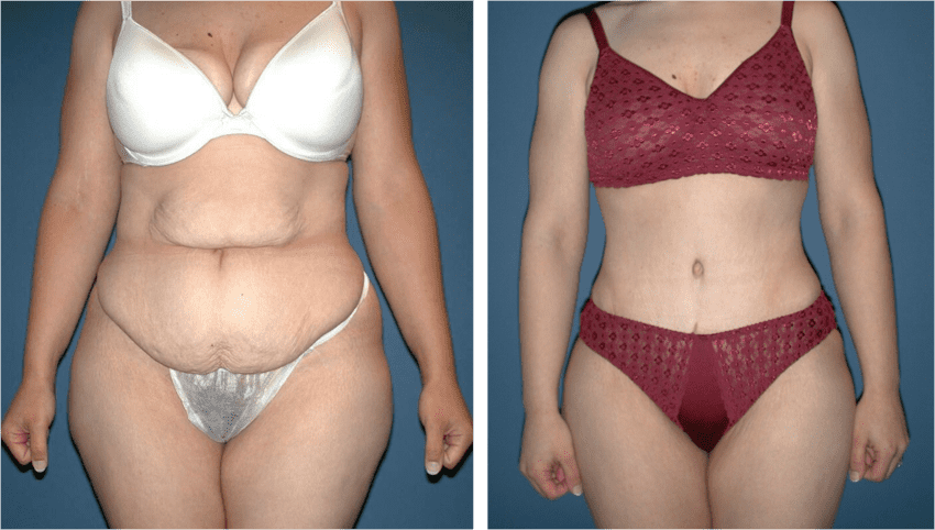 This image has an empty alt attribute; its file name is prix-abdominoplastie-circonferentielle-turquie.png
