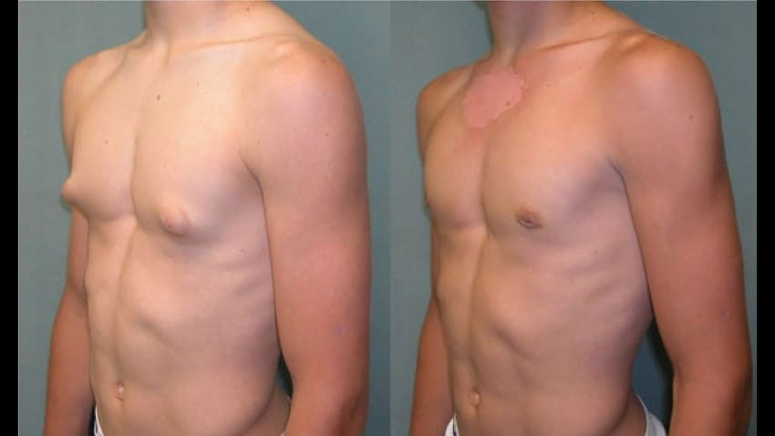 This image has an empty alt attribute; its file name is prix-gynecomastie-turquie-pas-cher.jpg