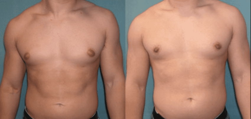 This image has an empty alt attribute; its file name is prix-gynecomastie.png