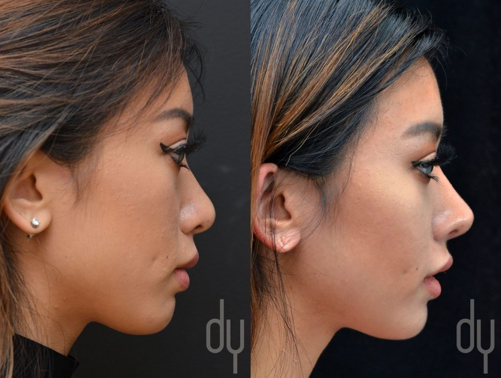 This image has an empty alt attribute; its file name is rhinoplastie-asiatique-1024x773.jpg