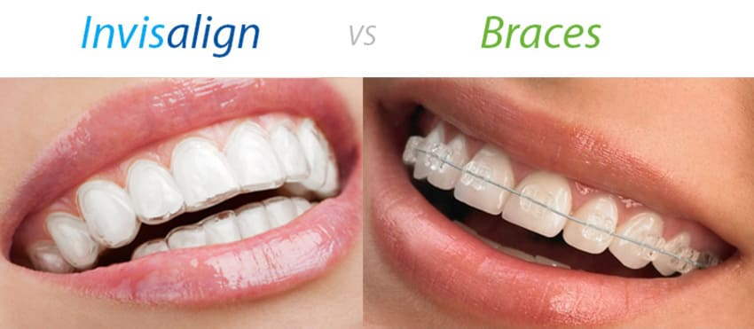 This image has an empty alt attribute; its file name is invisalign.jpg