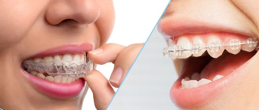 This image has an empty alt attribute; its file name is prix-invisalign-hongrie.jpg