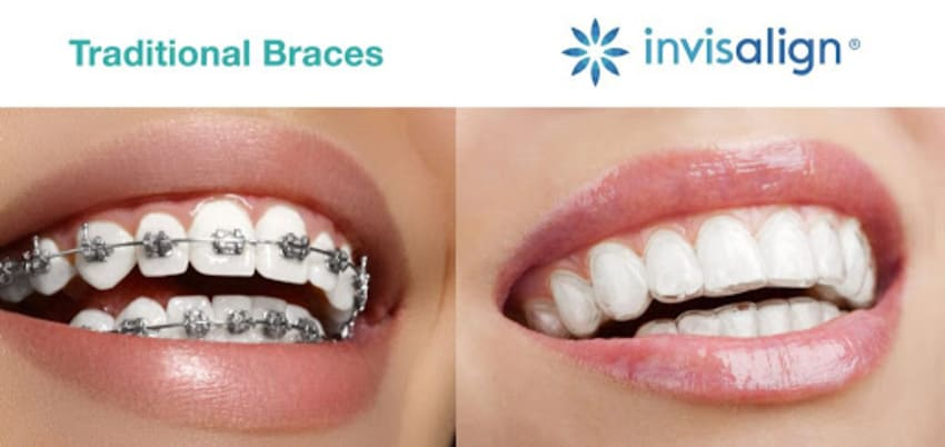 This image has an empty alt attribute; its file name is prix-invisalign.jpg