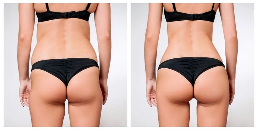 This image has an empty alt attribute; its file name is sculptra-augmentation-fesses.jpg
