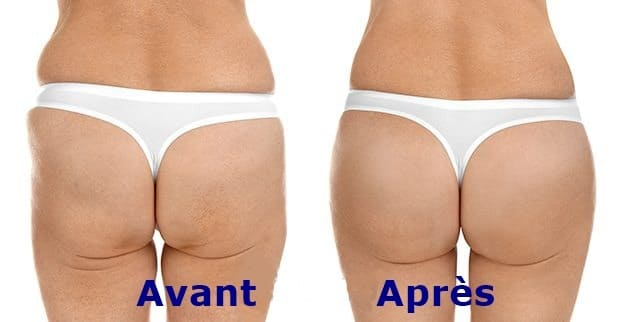 This image has an empty alt attribute; its file name is lifting-fesses-avant-apres.jpg