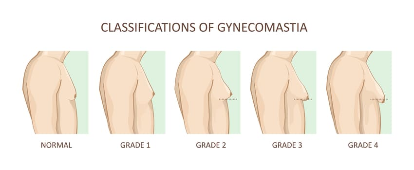 This image has an empty alt attribute; its file name is prix-gynecomastie-1.jpg