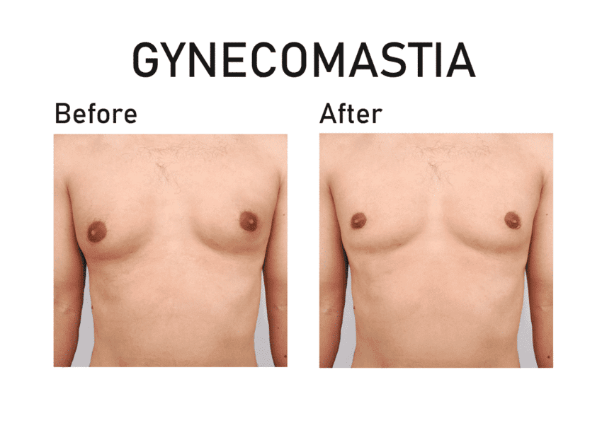 This image has an empty alt attribute; its file name is prix-gynecomastie-dubai.png