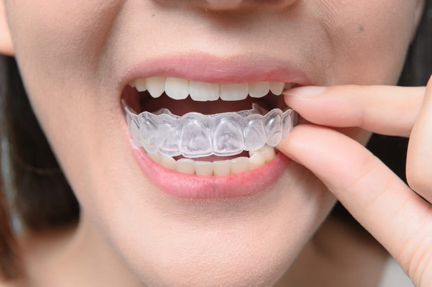 This image has an empty alt attribute; its file name is prix-invisalign-turquie-pas-cher-1.jpg